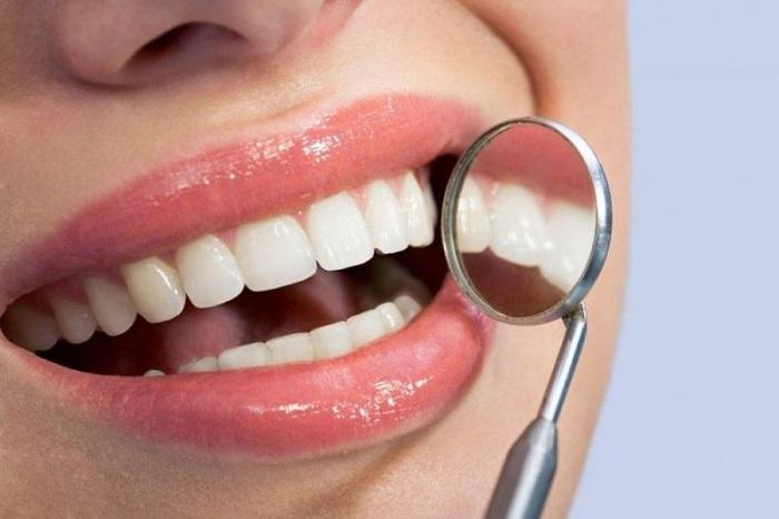 trồng răng sứ cả hàm