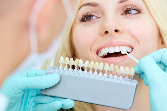 trồng răng sứ cao cấp