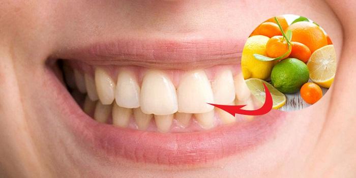 trồng răng sứ có bị hôi miệng không