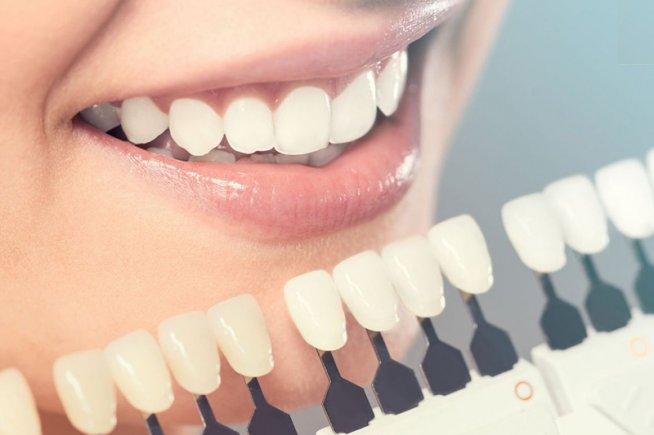 trồng răng sứ hết bao nhiêu tiền