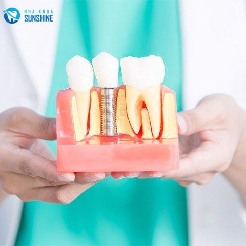 trồng răng sứ implant có đau không
