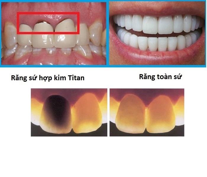 trồng răng sứ kim loại có tốt không