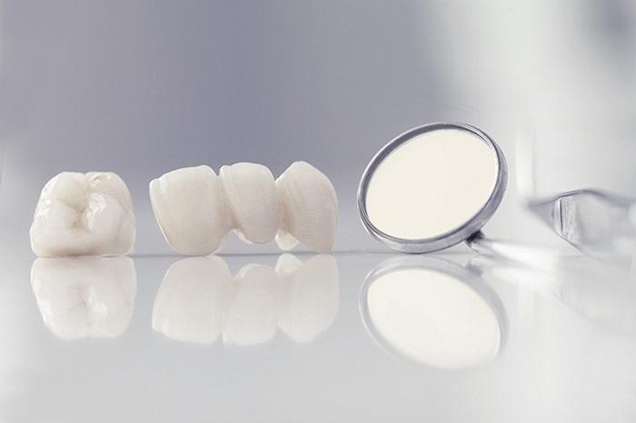 trồng răng sứ nguyên hàm bao nhiêu tiền