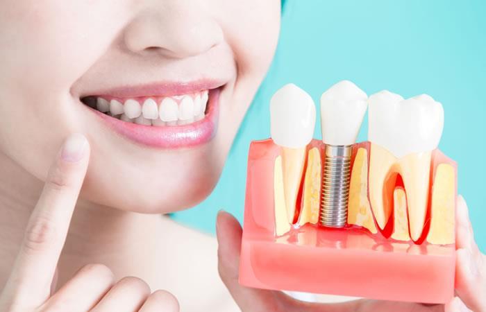 trồng răng sứ số 6