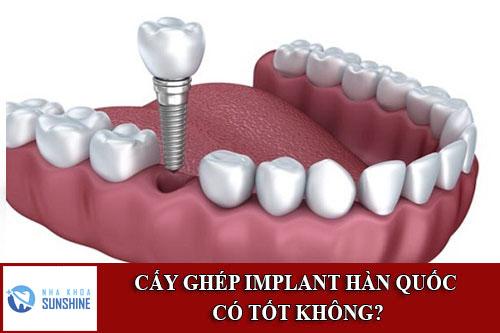 trụ Implant hàn quốc có tốt không