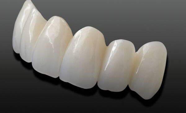 tuổi thọ của răng sứ cercon