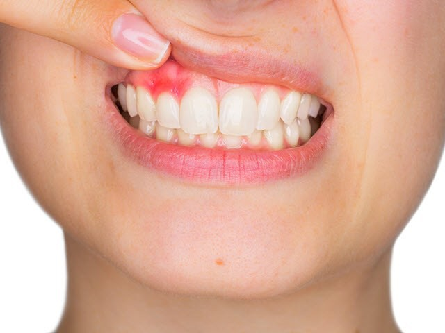bị viêm lợi khi làm răng sứ