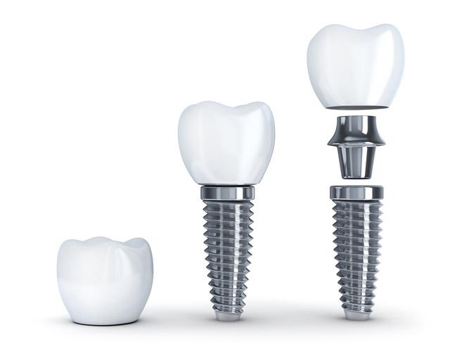 trồng răng Implant loại nào tốt