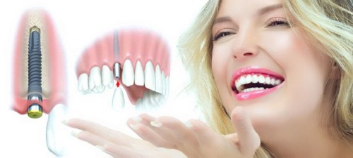 báo giá trồng răng Implant