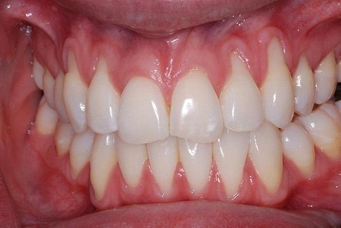 bị tụt lợi có niềng răng được không