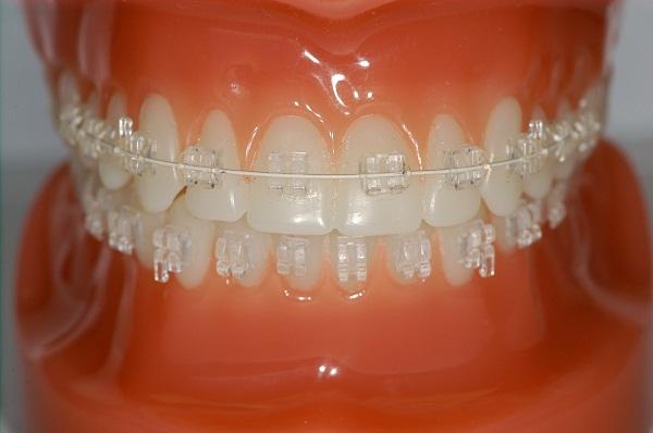 các loại niềng răng mắc cài sứ