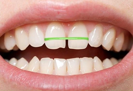 cách niềng răng hô tại nhà