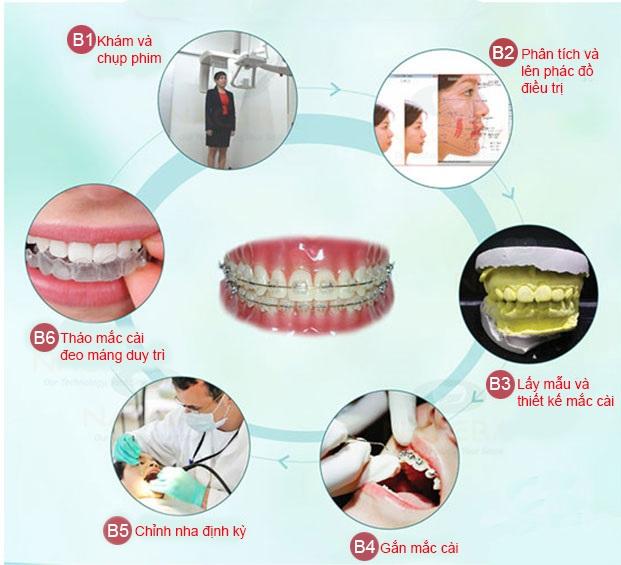 chi phí niềng răng 1 hàm