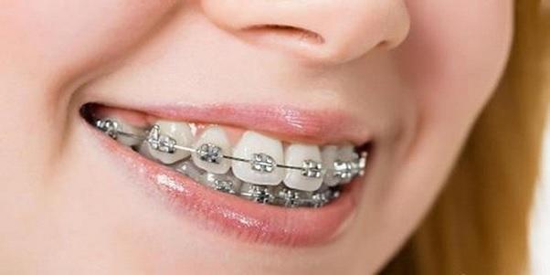chi phí niềng răng 2 hàm