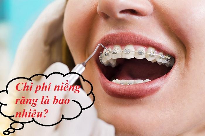 chi phí niềng răng bên Nhật