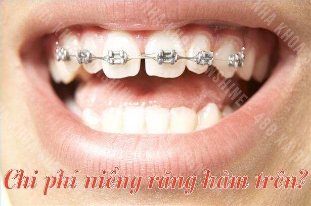chi phí niềng răng hàm trên