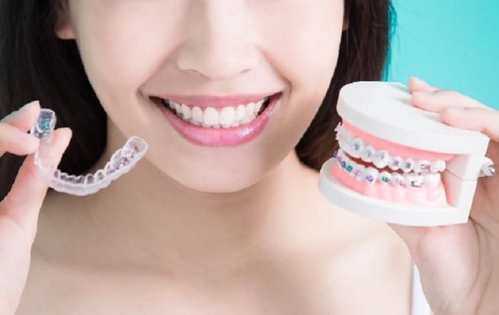 chi phí niềng răng hô