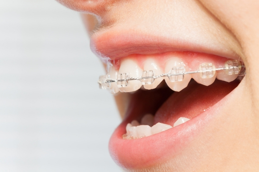 chi phí niềng răng hô nhẹ