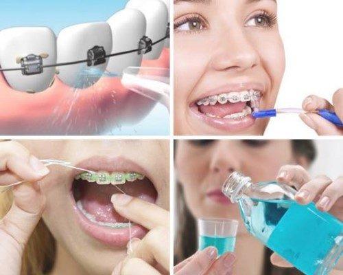 chi phí niềng răng mắc cài trong