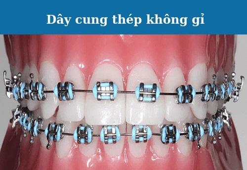 có mấy loại dây cung trong niềng răng
