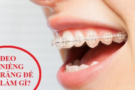 đeo niềng răng để làm gì