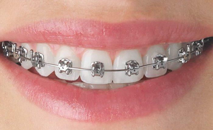 dụng cụ niềng răng tại nhà 300k