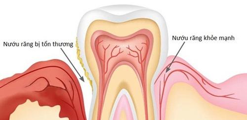 dụng cụ niềng răng tại nhà có hiệu quả không