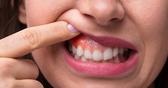 dụng cụ niềng răng tại nhà có tốt không