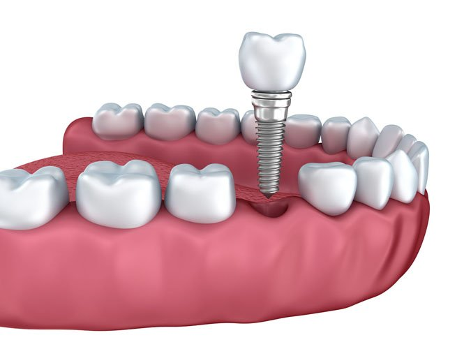 giá cả trồng răng Implant