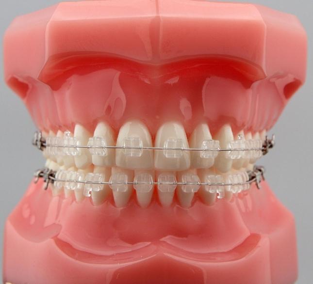 giá niềng răng mắc cài sứ dây trong