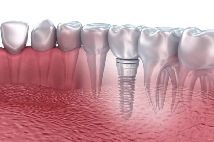 giá trồng răng bằng phương pháp Implant