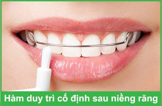 hàm duy trì sau niềng răng giá bao nhiêu