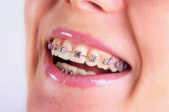 làm niềng răng mất bao lâu