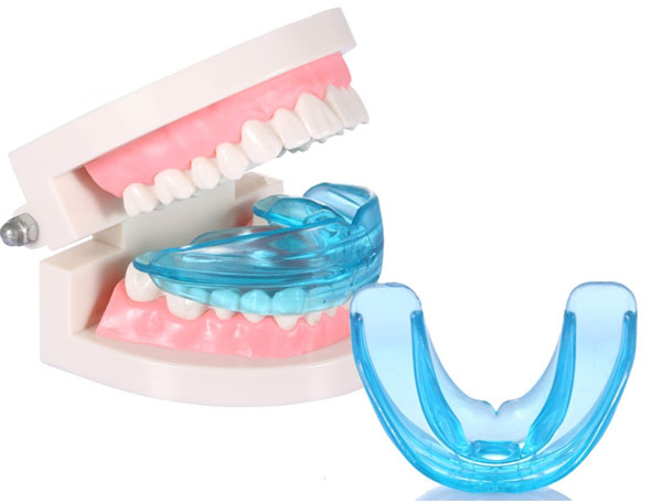 máng niềng răng cho trẻ em