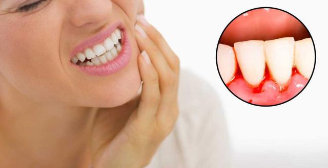 nguyên nhân niềng răng bị tụt lợi