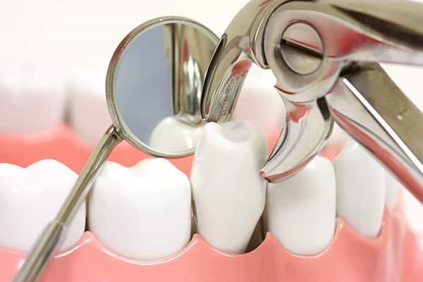 nhổ răng để niềng răng có đau không