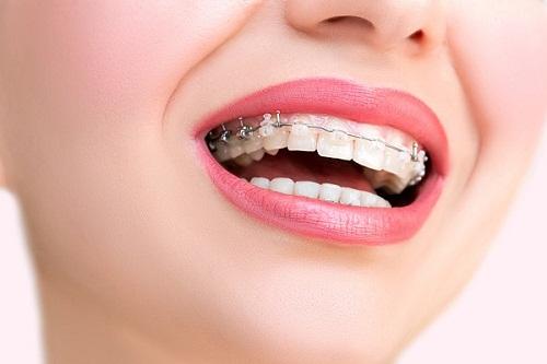 niềng 1 cái răng cửa