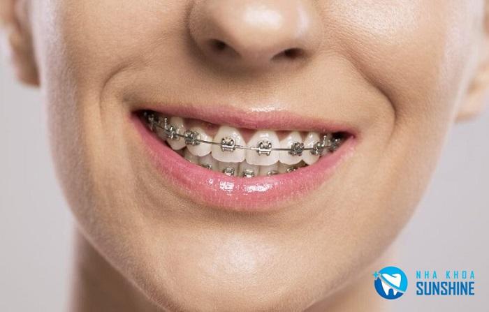 niềng 2 răng cửa bị lệch