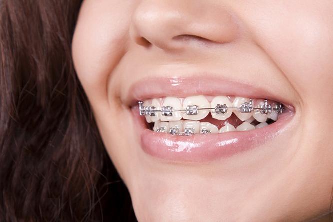 niềng răng 2 hàm giá bao nhiêu