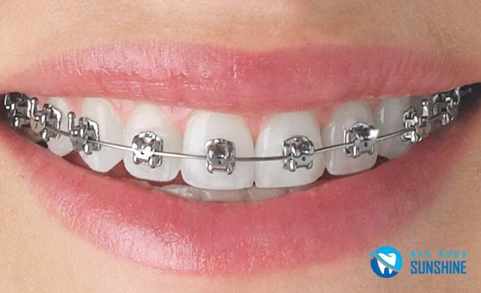 niềng răng 3 tháng