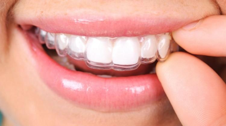 niềng răng 3d là gì