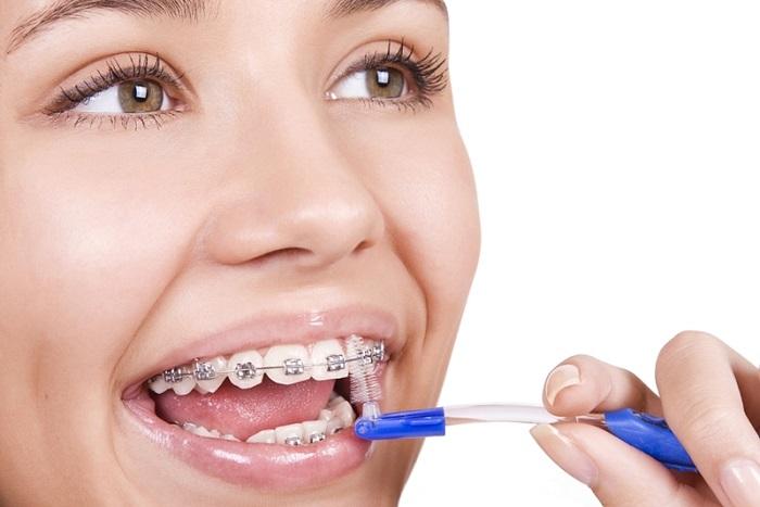 niềng răng ăn uống như thế nào
