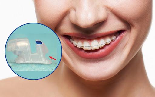 niềng răng bằng mắc cài tự buộc