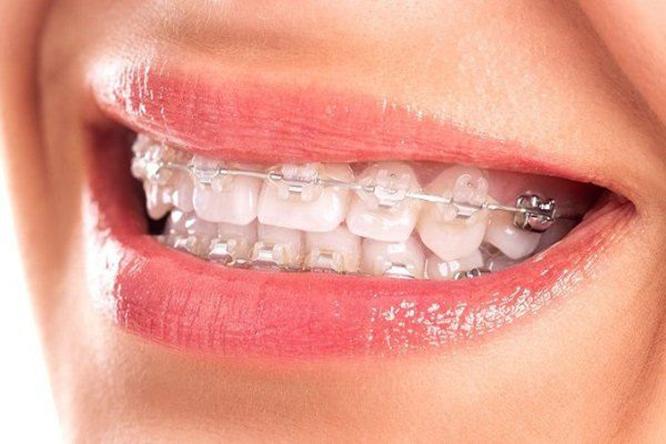 niềng răng bao lâu thì răng bắt đầu di chuyển