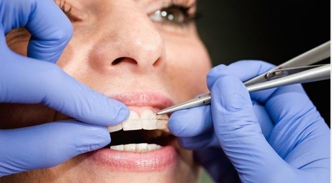 niềng răng bao lâu thì tháo