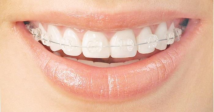 niềng răng cài sứ