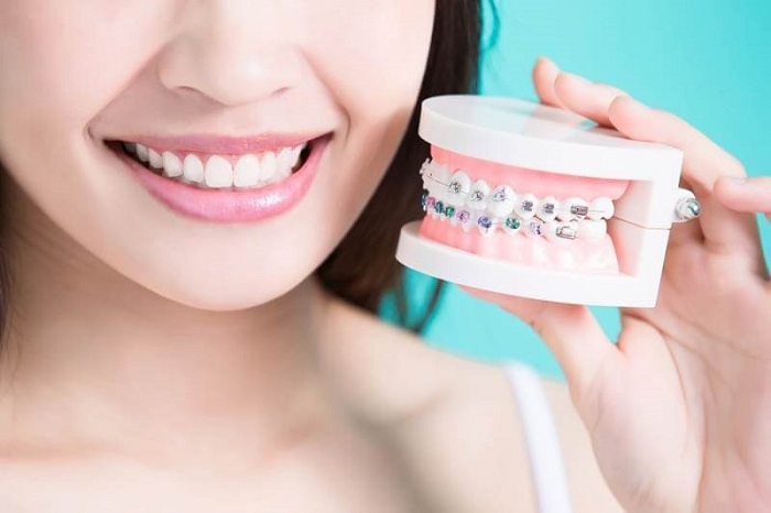 niềng răng chi phí thấp