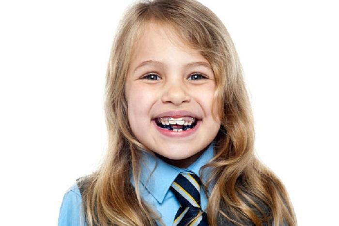niềng răng cho trẻ 10 tuổi
