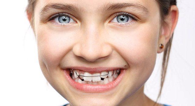niềng răng cho trẻ em hết bao nhiêu tiền