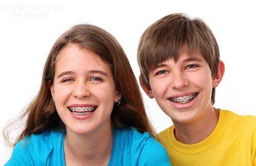 niềng răng cho trẻ em ở đâu tốt